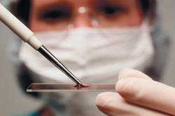 Анализ крови на амилоидоз