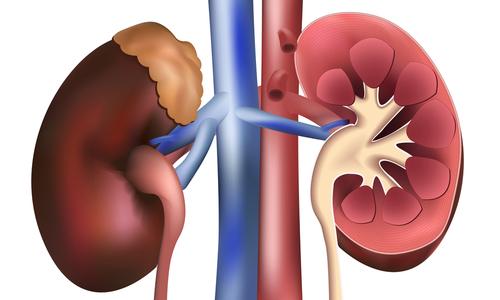 Почки симптомы болезни и лечение диета. Симптомы болезни почек и лечение