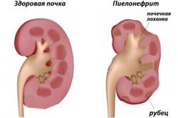 Признаки пиелонефрита у женщин, возможние осложнения и лечение заболевания