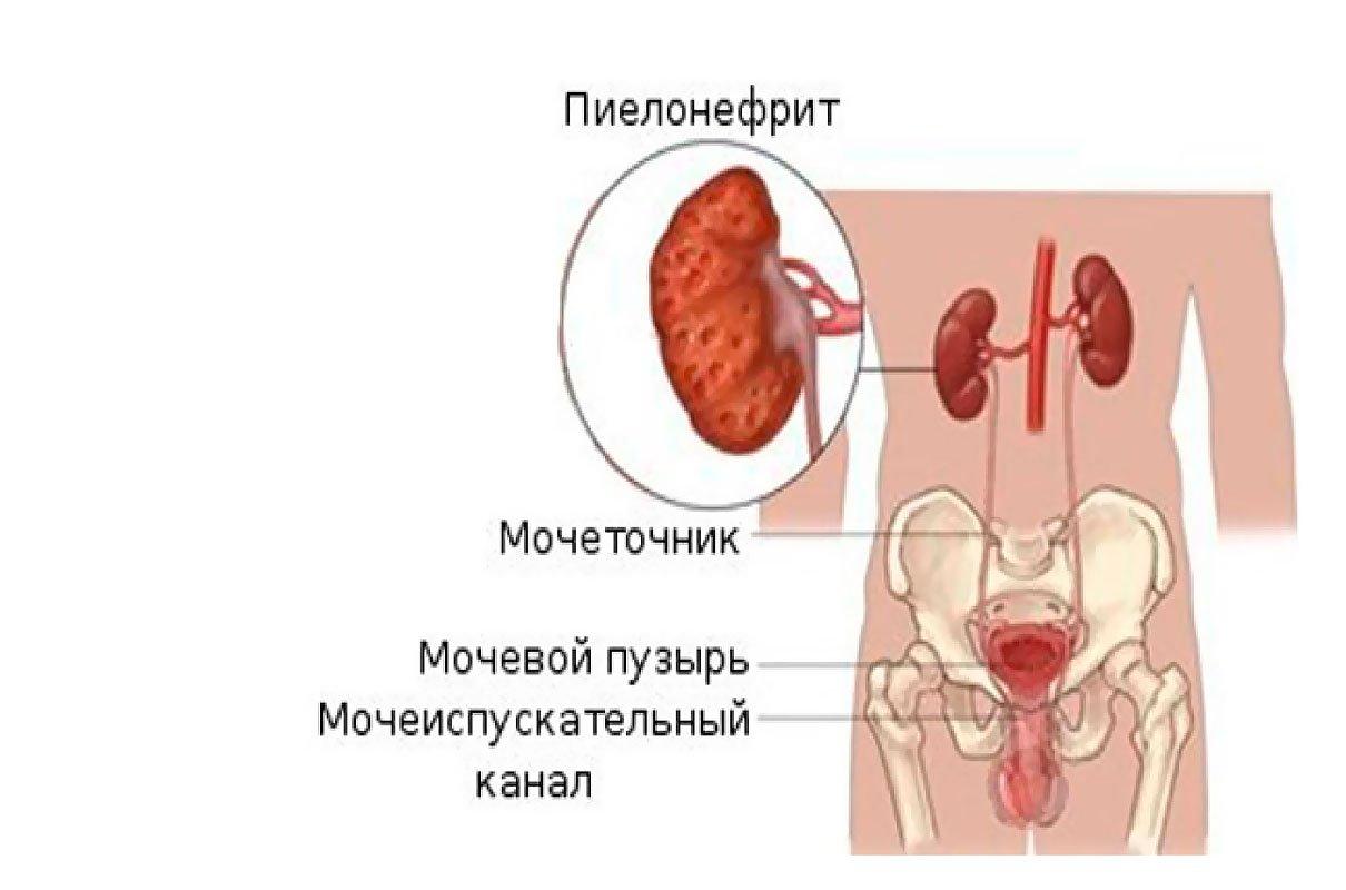 Пиелонефрит у мужчин и женщин