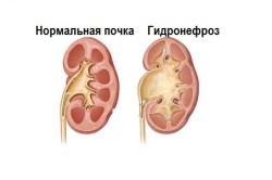 Вид нормальной почки и почки с гидронефрозом