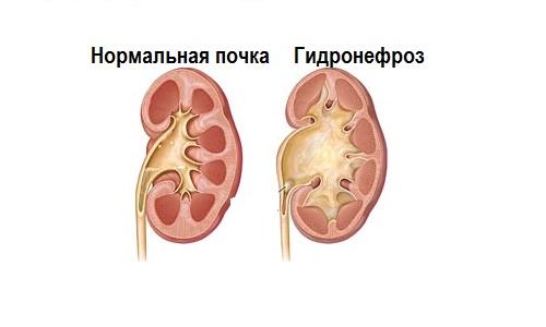 Нормальная почка и почка с гидронефрозом