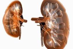 Изображение здоровой почки и больной пиелонефритом