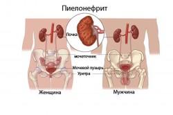 Пиелонефрит у женщин и мужчин