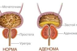 Аденома простаты - причина возникновения пиелонефрита