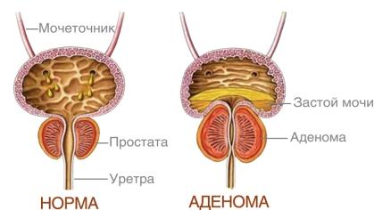 Аденома в почках симптомы
