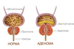 Сравнение здоровой почки и аденомы