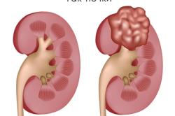Опухоль почки: причини и классификация видов, методи лечения