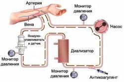 Схема очищения крови