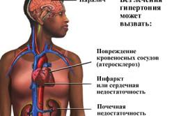 Последствия почечной гипертонии
