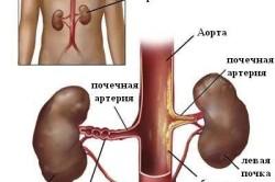 Особенности почечной гипертонии